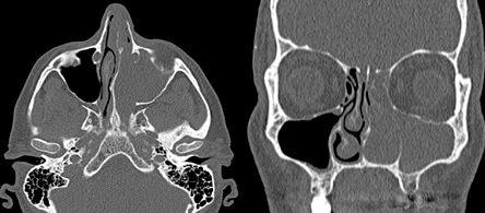 КТ-снимки пациента с первичной инвертированной папилломой полости носа